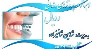 لابراتوار پروتز های دندانی رویال