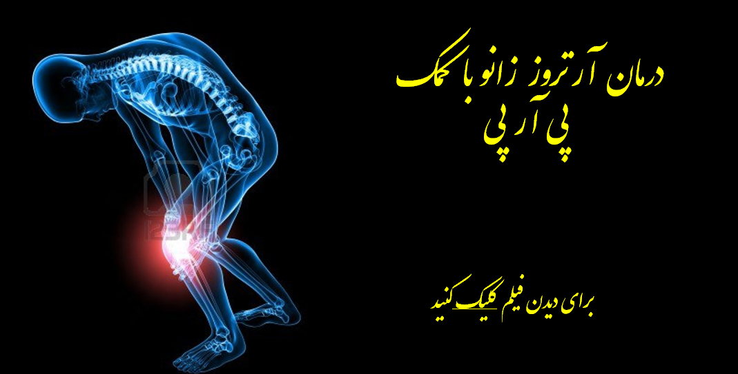 دکتر علی نقره کار در تهران3