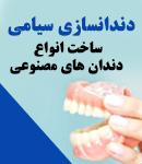 دندانسازی سیامی در اصفهان