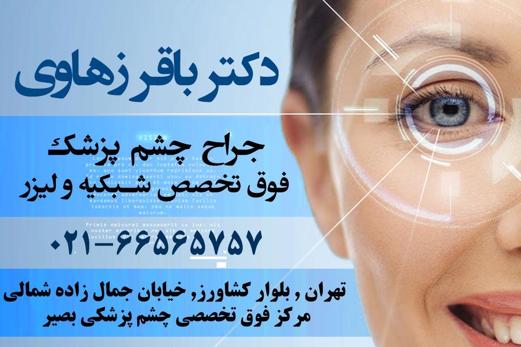 دکتر باقر زهاوی چشم پزشک در تهران